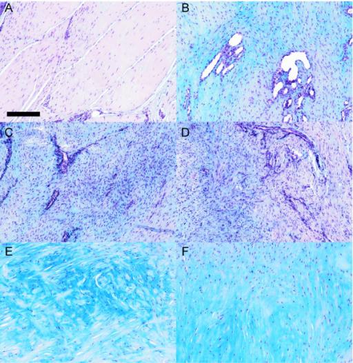 Anatomia patologica dell'epicondilite