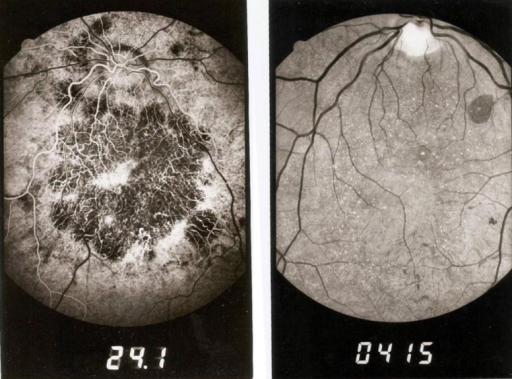 Numerous retinal crystals and chorioretinal atrophy are visible on the fundus photos of the patients with Bietti crystalline corneoretinal dystrophy.