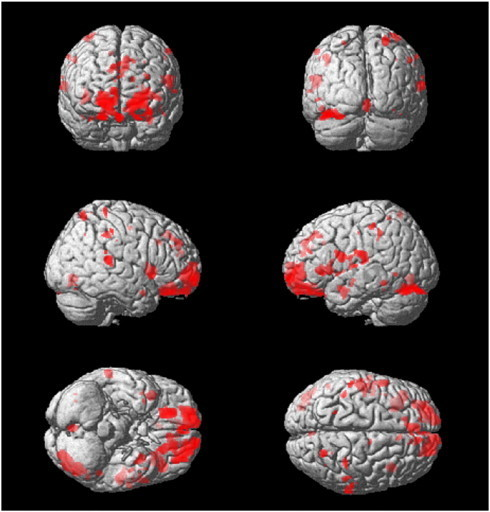 Differences in GMV between CAD patients and age-matched controls measured at baseline. t-Statistics displayed on a rendered model of a single subject brain. The red blobs on coronal, sagittal and transverse planes indicate areas of decreased GMV in the CAD patient group.