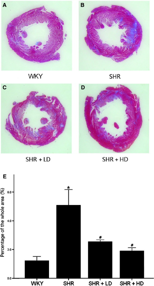 Masson's trichrome stain of hearts of WKY controls, SHR controls, SHR + LD and SHR + HD, Blue = fibrous collagen, red = myocytes. (A) the comparative fibrosis of WKY controls; (B) SHR controls showing an increasing amount of collagen deposition compared with WKY controls (P < 0.05); (C & D). SHR + LD and SHR + HD, less collagen accumulation compared with SHR controls (P < 0.05); representative histological sections; (E) quantitative analysis of fibrosis in the four groups by the ratio of the fibrosis area to the whole. Values, mean ± SED; n = 3–4; *P < 0.05 versus WKY controls; #P < 0.05 versus SHR controls.