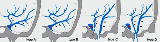 Types of termination of the uncal vein. Type A: The uncal vein terminated directly into the cavernous sinus (41 sides, 34 %). Type B: The uncal vein terminated into the superficial middle cerebral vein (58 sides, 48 %). Type C: The uncal vein terminated into the laterocavernous sinus (15 sides, 13 %). Type D: The uncal vein terminated into the paracavernous sinus (4 sides, 3 %). Arrows indicate the uncal vein, and arrowheads indicate the superficial middle cerebral vein