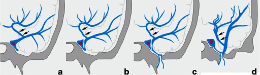 Schematic drawing of variation in termination of superficial middle cerebral vein in type B uncal venous termination. a The superficial middle cerebral vein (SMCV) terminated to the cavernous sinus. b The SMCV terminated to the laterocavernous sinus into the cavernous sinus. c The SMCV terminated to the laterocavernous sinus into the pterygoid plexus. d The SMCV terminated to the paracavernous sinus. Arrows indicate the uncal vein