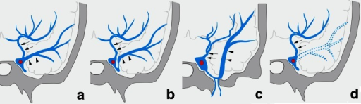 Schematic drawing of variation in termination of SMCV in type A uncal venous termination. a The uncal vein terminated directly to the cavernous sinus, and the SMCV terminated to the cavernous sinus. b The SMCV terminated to the laterocavernous sinus. c The SMCV terminated to the paracavernous sinus. d The SMCV is aplastic. Arrows indicate the uncal vein, and arrowheads indicate the superficial middle cerebral vein