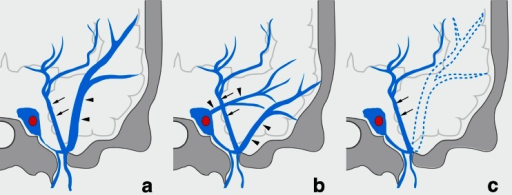 Schematic drawing of variation in termination of SMCV in type D uncal venous termination. a The uncal vein terminated to the paracavernous sinus, and the SMCV terminated to the paracavernous sinus. b The SMCV terminated to the paracavernous sinus and the cavernous sinus. c The SMCV is aplastic