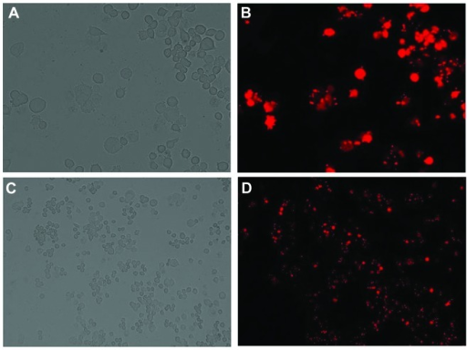 Detection of transfection efficiency following transfection of liver cancer Bel-7402 cells with the Stealth small interfering RNA. 24 h post transfection, the transfection efficiency was >85%, as revealed by (A and C) light and (B and D) fluorescence microscopy. (A and B, magnification, ×400; C and D, magnification, ×100).