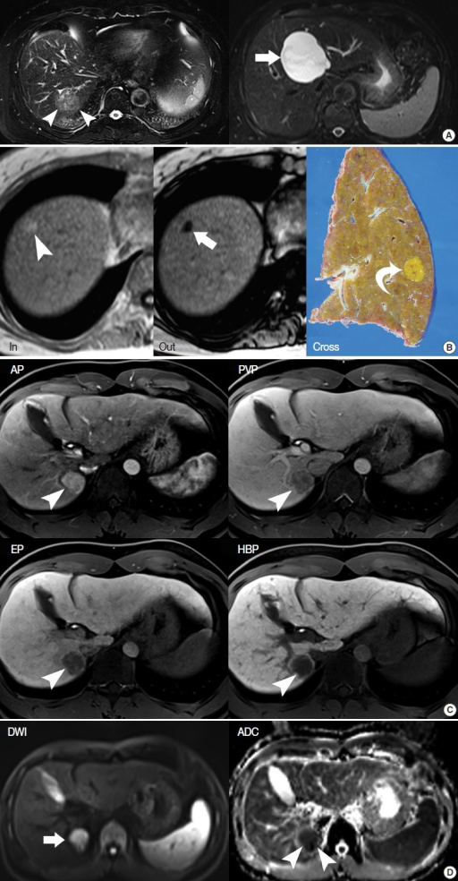 Routine magnetic resonance imaging sequences. (A) T2-weighted imaging is helpful for the differential diagnosis of liver tumors. Hepatocellular carcinoma (HCC) usually shows intermediate high-signal intensity (arrowheads on the left), whereas hepatic cysts show bright high-signal intensity (arrow on the right). (B) In-phase and opposed-phase images provide information regarding the fat or iron content of hepatocellular nodules. The fat component of a nodule is seen as high-signal intensity on in-phase imaging (arrowhead on the left) and as low-signal intensity on opposed-phase imaging (arrow on the middle). On histology of the resected specimen, the nodule is confirmed as a fat-containing HCC. (C) Multiphasic dynamic images and hepatobiliary-phase images. After contrast injection, T1-weighted images are obtained in the arterial phase (AP), portal-venous phase (PVP), three-minute, delayed equilibrium phase (EP), and 20-minute, delayed hepatobiliary phase (HBP) to provide hemodynamic information regarding liver tumors. An HCC (arrowheads) shows typical hemodynamic features, including enhancement on AP, and washout on PVP and EP. On HBP, the HCC is seen as a hypodense mass. (D) Diffusion-weighted imaging (DWI) and the apparent diffusion coefficient (ADC) map are helpful for evaluating the cellularity of a liver tumor. HCC mostly shows high signal intensity on DWI (arrow on the left) and low signal on the ADC map (arrowheads on the right).