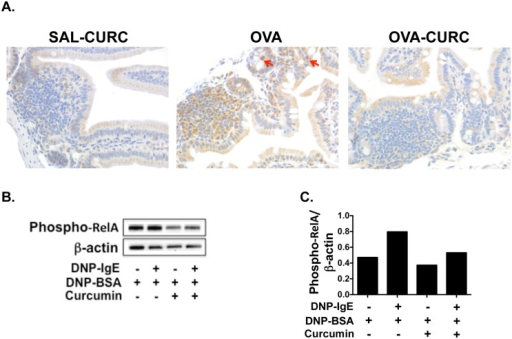 Treatment of allergic mice with curcumin inhibits the activation of NF-κB.(A) Mice were fed with OVA and curcumin and sacrificed as depicted in Fig 1C. Immunohistochemistry on jejunal sections was performed as described in Materials and Methods. Phospho-relA staining (brown) in jejunal tissue is shown. Phospho-relA-positive mast cells as assessed by morphologic analysis are depicted by red arrows. (B) BMMCs were cultured with or without DNP-IgE and 30 μM curcumin in DMSO and activated in the presence of antigen 24 hours later. 12 hours later, protein was extracted from whole cell lysates and Western blot was performed. Data are representative of three experiments. (C) Quantification of the Western Blot data from B is shown.