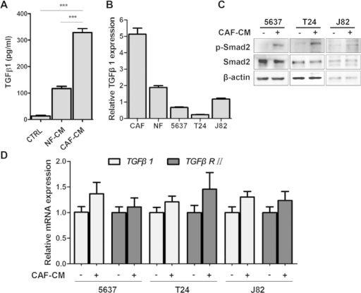 CAFs secreted TGFβ1 to activate TGFβ/Smad signaling in bladder cancer cells.A: TGFβ1 in conditional mediums secreted by 5637 (CTRL), NF and CAF cells were quantified by ELISA. B: The mRNA expression levels of TGFβ1 in CAFs, NFs and three bladder cancer cell lines by qRT-PCR using β-actin gene as the normalization control. C: The expression of phosphorylated Smad2 and total Smad2 protein in the CAF-CM treated bladder cancer cell lines by immunoblotting. β-actin protein was used as the loading control. D: The expression levels of TGFβ1 and TGFβRII in bladder cancer cell lines cultured with CAF-CM were detected by qRT-PCR using β-actin gene as the normalization control. ***P < 0.001.