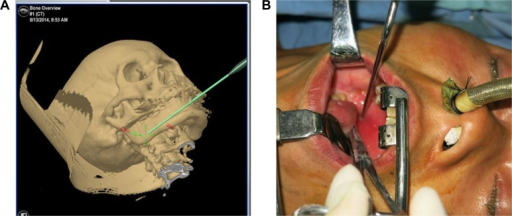 Intraoperative application of surgical navigation to orient the elongated SP.Notes: After the registration process was completed, a pointer was used to find the tip of SP using the guide of the images shown in the navigation machine's screen (A). The green line denotes planned resection site in SP. Red color indicates the residual SP. Intraorally, the pointer showed the appropriate mucosa incision site that was closest to the SP (B).Abbreviation: SP, styloid process.