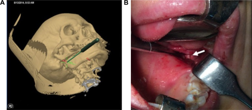 The intraoperative navigation was applied to expose the ESP by intraoral approach.Notes: The pointer was inserted into the intraoral wound and the virtual resection site was found using the guide of the images shown in the navigation machine's screen (A). The green lines denote planned resection site in SP. Red color indicates the residual SP. The corresponding real resection spot was clearly exposed by the intraoral approach (B, white arrow).Abbreviations: ESP, elongated styloid process; SP, styloid process.