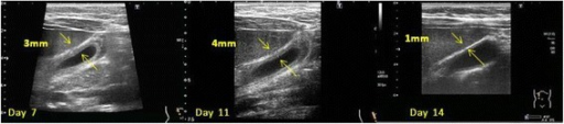 Ultrasonography of the gallbladder. Abdominal ultrasonography revealed a gallbladder without calculi, a thickened gallbladder wall (arrows), and perivesical fluid accumulation. These findings resolved by day 14 after admission