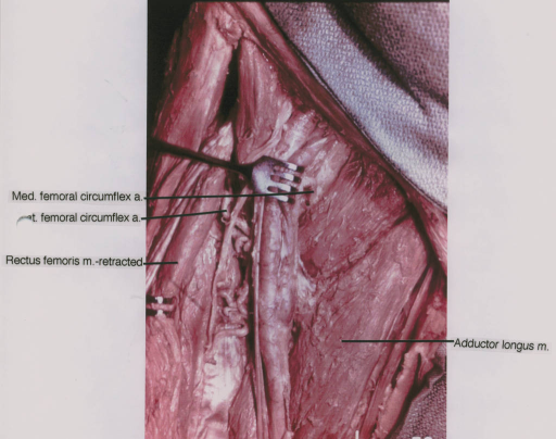 medial femoral circumflex artery; lateral femoral circumflex artery; rectus femoris muscle; adductor longus muscle
