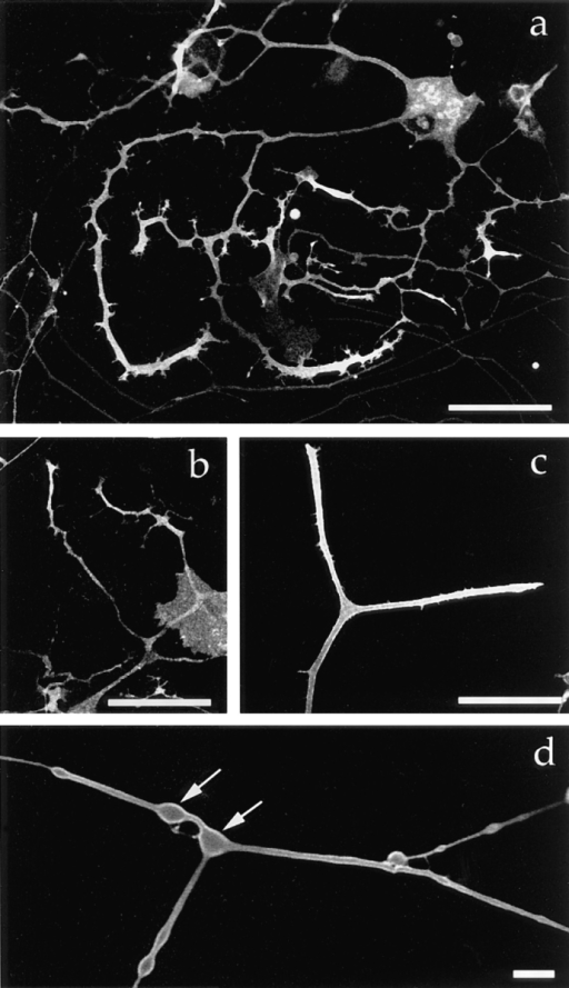 Targeting of the plasma membrane protein–GFP fusion  proteins in mouse DRG neurons. 40 h after infection with each  recombinant virus, living cells were examined by confocal laser  scan microscopy. (a) GAP-43–GFP fusion protein. (b) SNAP-25–GFP fusion protein. (c) TrkA–GFP fusion protein. The proteins were concentrated in the growthcones. (d) Higher magnification of a confocal slice showing that GAP-43–GFP is localized  on the plasma membrane. Arrows indicate varicosities. Bars: (a–c)  50 μm; (d) 5 μm.
