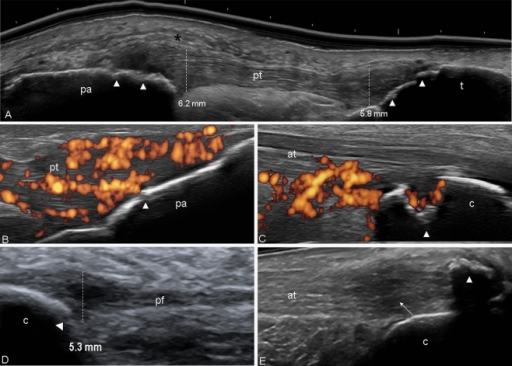 patellar tendon enthesis