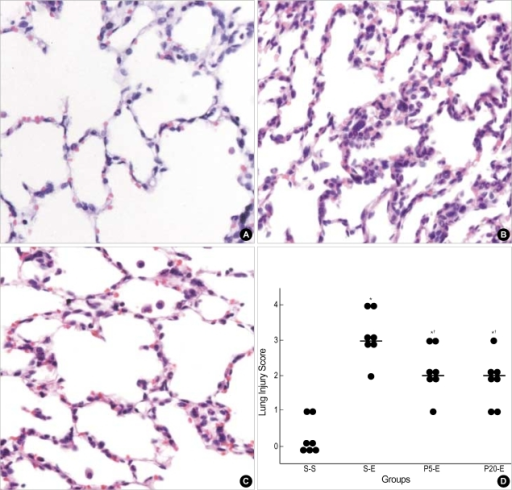 Effects of propofol on lung tissue damage 6 hr after the start of saline or endotoxin infusion. Representive photomicrographs show rabbit's lung with median values of lung injury score in (A) group S-S, (B) group S-E, and (C) group P-E (H&E, ×400). Lung injury score (D) was recorded from 0 (no damage) to 4+ (maximum damage) according to the criteria described in Materials and Methods. Each bar represents median value of seven rabbits in each group. *p<0.05 versus group S-S. †p<0.05 for group P5-E or P20-E versus group S-E.