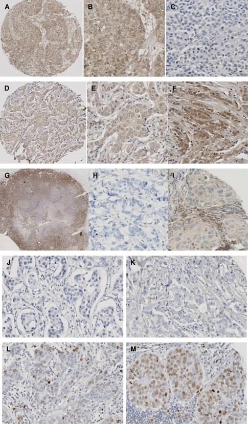 Images of immunohistochemistry (IHC) for each antibody. (A–C) Breast cancer tissue stained with c-Src antibody (1 : 200, Cell Signalling). (A) An overview of a 0.6 mm core of the breast cancer tissue microarray, demonstrating no stromal staining, weak cytoplasmic, none and weak nuclear staining; magnification × 10. (B) Weak cytoplasmic, none and weak nuclear and weak membrane staining; magnification × 100. (C) Negative staining of stroma and tumour tissue; magnification × 100. (D–F) Breast cancer tissue stained with Lyn antibody (1 : 5, BD Biosciences). (D) An overview of a 0.6 mm core of the breast cancer tissue microarray, demonstrating no stromal staining, weak cytoplasmic, none and weak nuclear staining; magnification × 10. (E) Weak cytoplasmic, none and weak nuclear staining; magnification × 100. (F) No stromal staining, weak cytoplasmic, none, weak and moderate nuclear staining; magnification × 100. (G–I) Breast cancer tissue stained with Lck antibody (1 : 50, Cell Signalling). (G) Strong staining of tonsil with Lck (positive control); magnification × 2. (H) Negative staining of stroma and tumour tissue; magnification × 100. (I) Weak cytoplasmic and weak membrane staining; magnification × 100. (J–M) Ki67 staining of invasive breast cancer specimen (1 : 150, DAKO). (J) Negative staining of stroma and tumour tissue; magnification × 100. (K) Ki67 staining classified as weak staining; magnification × 100. (L) Ki67 staining classified as moderate staining; magnification × 100. (M) Ki67 staining classified as strong staining; magnification × 100.