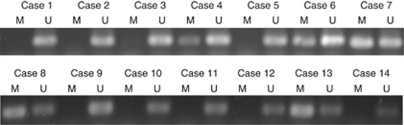 Examples of MSP of DSC3 DNA from patients with primary CRC. M=methylated product; U=unmethylated product.