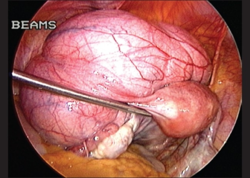 Figure 4 total laparoscopic hysterectomy for large uterus open i