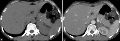 Atypical adrenal adenoma. A 45-year-old female with primary hyperaldosteronism due to left aldosterone-producing adenoma. Unenhanced CT image (a) shows ~ 4-cm size soft tissue density nodule in left adrenal gland (arrow). Limbs are not enlarged. Contrast-enhanced CT image (b) shows minimal enhancement of the nodule. The diagnosis of adenoma was confirmed on histopathological examination