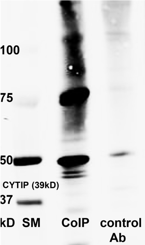 Co-immunoprecipitation of CYTIP with Ubiquitin.The immunocomplex obtained by incubating 2 mg of mature dendritic cells lysate with rat polyclonal anti CYTIP antibody (1A3) was analyzed by Western blot analyses with mouse anti ubiquitin and visualized with Alexa fluor 680 goat anti mouse antibody. Ubiquitination of the CYTIP precipitate is shown (Co-IP). As a control the precipitate obtained with rat isotype control is shown.