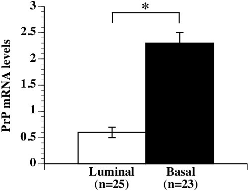 PrP levels are increased in basal breast carcinoma cell lines. PrP mRNA levels were averaged in basal or luminal tumor cell lines. Data represent mean ± SEM of PrP. * indicates p ≤0.05 between both groups.