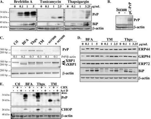 ER stress transcriptionally increases PrP levels in MCF-7 cells. One representative Western blot from at least three independent experiments is shown in A-B. (A) Western blots of PrP with the 3F4 antibody, BiP, and β-actin in protein extracts from MCF-7 cells treated 18 hrs with increasing concentrations of Brefeldin A, Tunicamycin, or Thapsigargin. (B) Western blot of PrP (3F4) and β-actin in protein extracts from MCF-7 cells incubated for 18 hrs in the absence or presence of serum or transfected with pCep4β-PrP (pC-PrP). (C) PrP, XBP1, sXBP1 and β-actin RT-PCR cDNA amplicons from cells treated for 6 hrs. The ratio of PrP over β-actin was calculated from three independent experiments. (D) Western blot of various ER stress-regulated proteins in MCF-7 cells treated 18 hrs with BFA, TM or Thps. (E) Western blot of PrP with the 3F4 PrP, CHOP and β-actin antibodies in protein extracts from MCF-7 cells treated 18 hrs with DMSO (Ctl) or ER stressors in the presence or in absence of cycloheximide (CHX) or actinomycin D (Act D). The immunoreactive band at 37 kDa was not consistently detected with the anti-PrP 3F4 antibody suggesting a non-specific band (ns).