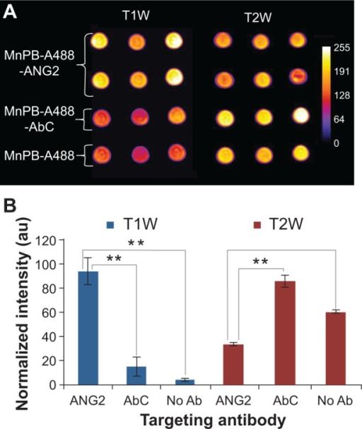 Molecular MRI-based detection of PBT cells using biofunctionalized Prussian blue nanoparticles. (A) T1-weighted and T2-weighted contrast enhancement in phantoms comprised of a fixed number of BSG D10 treated with MnPB-A488-ANG2 (n=6), MnPB-A488-AbC (n=3), or MnPB-A488 (no antibody, triplicate). (B) Normalized fluorescence signal intensity (au) for BSG D10 treated with ANG2, AbC, and no antibody-modified MnPB-A488. **P<0.05.Abbreviations: MnPB, manganese-containing Prussian blue; A488, avidin-Alexa Fluor 488; ANG2, anti-neuron-glial antigen 2; AbC, eotaxin antibody; BSG, brainstem glioma; T1W, T1-weighted; T2W, T2-weighted; PBT, pediatric brain tumor; au, arbitrary units; Ab, antibody; MRI, magnetic resonance imaging.