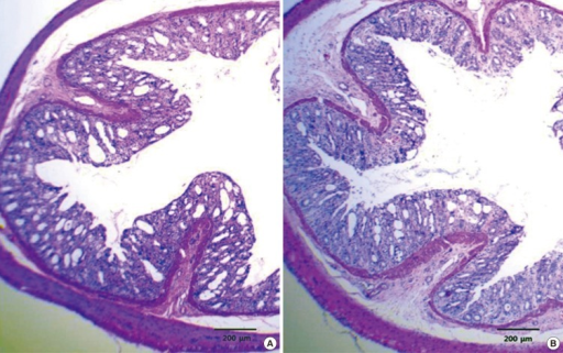 Histologic findings in large intestine of rats 3 days after irradiation. Transverse section of colon in Lactobacillus acidophilus group (A) and placebo group (B) were demonstrated after 20 Gy of irradiation. Original magnifications 40 ×.