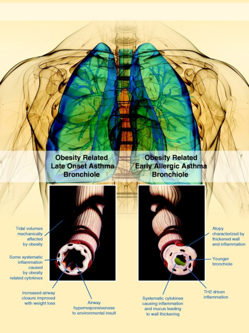 Image of asthma phenotypes for early and late onset obesity-associated asthma (A color version of this figure is available in the online journal)