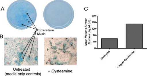 Cysteamine disrupts production of normal human bronchial epithelial (NHBE) cell-derived mucus. Differentiated NHBE monolayers were exposed (basally) to 1 mg/ml cysteamine or control culture media for 7 days. Mucin production at the apical aspect was then assessed by Alcian blue staining macro- and microscopically (panels A & B) and the amount of free, non-mucin bound airway surface fluid quantified (panel C).