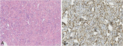 Typical features of SFT visible in all cases (A, HE 10x) and immunohistochemical positive staining of CD34 (B, 10x).