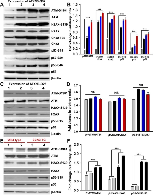 Mutant ATXN3 activates DNA damage-response in vitro and in vivo.(A) Expression of ATXN3-Q84 was induced in differentiated SH-SY5Y cells; cells were harvested 0, 3, 6 and 12 days post-induction (lanes 1 to 4) and their lysates analyzed by Western blotting to determine the levels of ATM-S1981, total ATM, γH2AX-S139, total H2AX, Chk2-T68, total Chk2, p53-S15, p53-S20, p53-S46 and total p53; β-actin was used as the loading control in A, C and E. (B) Levels of ATM-S1981, γH2AX-S139, Chk2-T68, p53-S15, p53-S20 and p53-S46 relative to their respective total protein levels in cells expressing ATXN3-Q84. Cells were harvested 0 (Grey), 3 (black), 6 (blue) and 12 (red) days post ATXN3-Q84 expression in Figs. B and D (n = 4, data represent mean ± SD, *** = p < 0.001 for B and F) (C) Expression of ATXN3-Q28 was induced in differentiated SH-SY5Y cells; cells were harvested 0, 3, 6 and 12 days post-induction (lanes 1 to 4) and their lysates analyzed by Western blotting to determine ATM-S1981, total ATM, γH2AX-S139, total H2AX, p53-S15 and total p53 levels. (D) Cells expressing ATXN3-Q28 were analyzed as in B and relative levels of ATM-S1981, γH2AX and p53-S15 vs. the respective total protein levels are shown; NS denotes non-significant. (E) Total protein was isolated from the deep cerebellar nuclei (DCN) of SCA3 transgenic mice (24 weeks old) constitutively expressing human mutant ATXN3 (lanes 3 and 4) and age-matched control mice (lanes 1 and 2) and analyzed by Western blotting to determine ATM-S1981, total ATM, γH2AX-S139, total H2AX, p53-S15 and total p53 levels. Each lane represents total protein from a pool of DCN tissue from 4–5 wild-type or an equal number of transgenic littermates. (F) Relative levels of ATM-S1981, γH2AX, p53-S15 with respect to total protein in SCA3 transgenic mouse DCN (black bars) vs. age-matched control DCN (grey bars); each bar represents a pool of DCN tissue collected from 4 to 5 littermate mice (either wild-type or transgenic). Data represent mean ± SD; *** = p < 0.001.