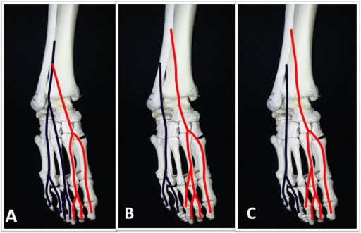 Three patterns A, B and C of the superficial peroneal nerve as described by Blair et al. The medial dorsal cutaneous nerve (MDCN)is shown in red and the intermediate dorsal cutaneous nerve (IDCN) is shown in blue.