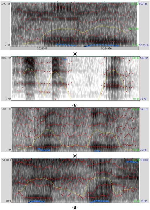 (a) Vocalization's sonogram of piglets under normal welfare (baseline); (b) vocalization's sonogram of piglets being squeezed (assumed to produce pain); (c) vocalization's sonogram of piglets feeling cold; (d) vocalization's sonogram piglets feeling hunger. The formants (dotted red line), the sound intensity (yellow line), and the frequency of pitch (in blue line) are shown in each sonogram.