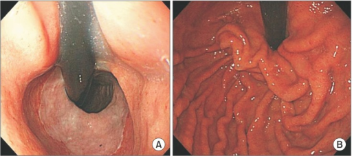 (A) Preoperative endoscopic findings reveal that the gastric cardia is not tightly surrounding a retroflexed endoscope. (B) Postoperative endoscopic findings reveal lack of hiatal relaxation in the retroflexion view.