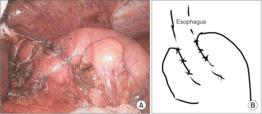 Intraoperative photograph of completion of the Toupet fundoplication (A) and schematic (B).