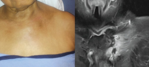 Left: physical examination findings of edema, erythema and torticollis; right: corresponding magnetic resonance image displaying soft tissue and manubrium signal uptake, as well as joint space effusion