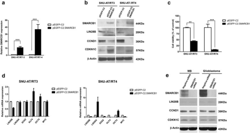 Overexpression of SMARCB1in AT/RT, MB and glioblastoma cells. a Transfection efficiency of SMARCB1 was confirmed using RT-qPCR at 48 h after pEGFP-C2.SMARCB1 transfection. b Transfection with pEGFP-C2.SMARCB1 decreased LIN28B and CCND1 expression and increased CDKN1C expression. c Cell viability was significantly diminished after the introduction of SMARCB1. d LIN28B was suppressed and OCT4 was increased after the restoration of SMARCB1 expression in all AT/RT cells. However, the differential expression of LIN28A, SOX2, KLF4 and MYC was detected in all AT/RT cells. e In MB and glioblastoma, the expression of LIN28B, CCND1 and CDKN1C was unchanged after SMARCB1 knockdown. **P < 0.01; ***P < 0.001. Error bars represent ±SD