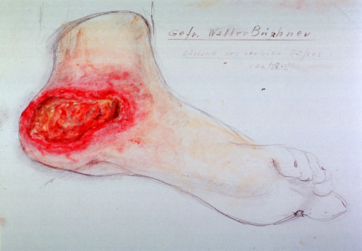 <p>Right foot with large ulcer on its heel.</p>