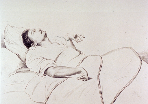 <p>A male patient lies in a bed, his body and hands severely contorted during a seizure.</p>