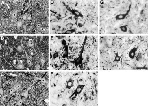 Lack of anterior horn cell changes in old NF-deficient mice. In A–C, phase contrast images are shown of toluidine blue–stained sections of lumbar spinal cord from 2-yr-old wild-type (A), NF-M– (B), or NF-M/H– (C)  mutant animals. In D–H immunoperoxidase-stained sections of lumbar spinal cord are illustrated from wild-type (D and G), NF-M– (E and H), or NF-M/H– (F)  mutant animals stained with an NF-L antibody (D–F) or SMI-32 (G and H). No significant differences between NF-M or NF-M/H mutants and wild-type were noted. Bar, 20 μm.