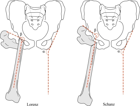 Both Lorenz and Schanz osteotomies provide 'pelvic support'. Milch described a post-osteotomy angle (β) which predicted abutment against the lateral wall of the pelvis when it exceeded the angle of pelvic inclination (α). When the difference was excessive, restriction of movement was significant and created a secondary disability