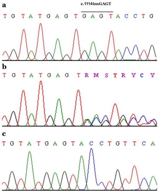 how to find mutation in dna sequence query