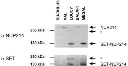 SET-NUP214 protein expression. Western blot analysis with Ab raised against the N-terminal region of SET and against the C-terminal region of NUP214. Cell lines LOUCY and MEGAL expressed the 140 kDa SET-NUP214 fusion protein and a 240 kDa protein marked with an asterisk, detected by both antibodies. No alternative splice forms were detected that would explain two SET-NUP214 size variants.
