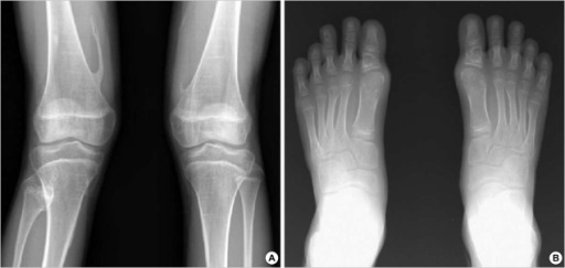 Radiographic findings suggestive of FOP in a patient with ambiguous clinical features (case 2). (A) This patient showed no ectopic ossification but an osteochondroma-like bony spurs were observed on both distal femora, (B) Big toe abnormalities in this patient showed a slanting of metatarso-phalangeal joint (hallux valgus deformity).