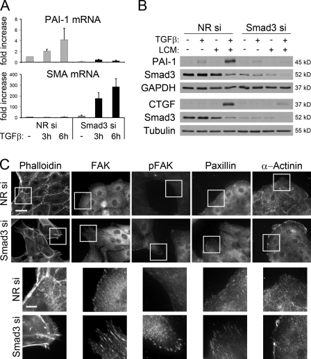 Smad3 silencing has opposite effects on the expression of mesenchymal marker PAI-1 and on MF characteristics (SMA and cytoskeleton remodeling). (A) PAI-1 and SMA mRNA was measured by qPCR in control and Smad3-depleted cells (Fig. 5 C) and treated with vehicle or TGF-β for 3 or 6 h. Note that although Smad3 depletion strongly stimulates TGF-β–induced SMA mRNA expression, the effect is still much less (∼0.125) compared with LCM (Fig. 5 C), in accordance with the fact that TGF-β alone (as opposed to LCM) does not induce SMA expression even in Smad3-depleted cells. (B) Expression of PAI-1 and CTGF protein under two-hit condition in Smad3-containing and -depleted cells. Cells were transfected with NR or Smad3 siRNA for 24 h, treated for an additional 48 h as indicated, and processed for Western blotting. (C) Smad3 depletion induces reorganization of the cytoskeleton. Cells were transfected with NR (top) or Smad3 siRNA (bottom) for 48 h, and F-actin and focal adhesions were visualized by rhodamine phalloidin or staining for FAK, phosphorylated FAK (pFAK), paxillin, or actinin. Loss of Smad3 induces the formation of central stress fibers and thick, elongated focal adhesions in cells located at the edges of islands. (bottom) Higher magnification images are shown of boxed areas. Bars: (top) 30 µm; (bottom) 10 µm. Error bars indicate mean ± SEM.