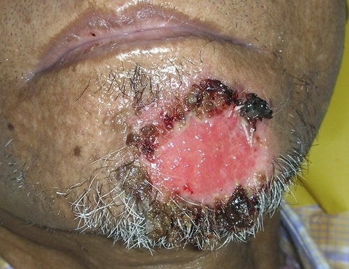 Superficial ulcer with adherent crusts over the chin. This figure appears in color at www.ajtmh.org.
