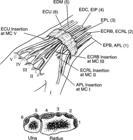 flexor tenosynovitis steroid injection