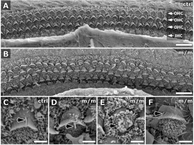 Scanning EM shows defects in patterning of cochlear hair cells in Mks1 mutants. In newborn wild-type (ctrl) cochlea (A), three rows of OHCs were aligned in parallel rows (arrows in A) but, in the Mks1 mutant animal (m/m; B), some OHCs were mal-positioned, with abnormal orientation of the stereocilia hair bundles. Higher magnification (C–F) showed that kinocilia (black arrows) in mutant hair cells (D–F) were of normal length compared to controls (C), but they were abnormally localized relative to the stereocilia hair bundles.