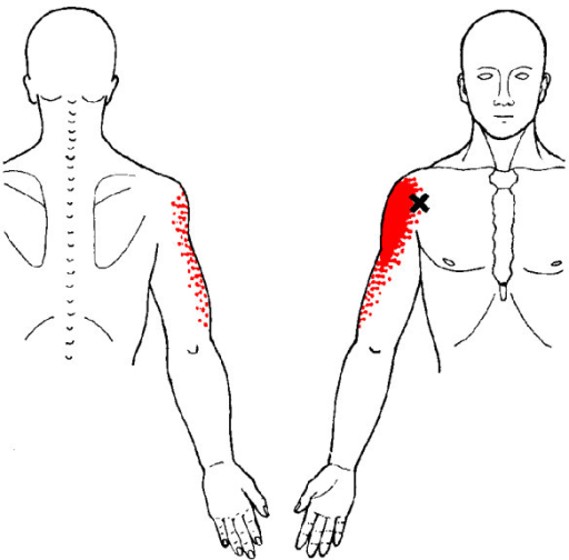 Referred Pain Patterns Red From The Anterior Deltoid Openi Cool Referred Pain Patterns